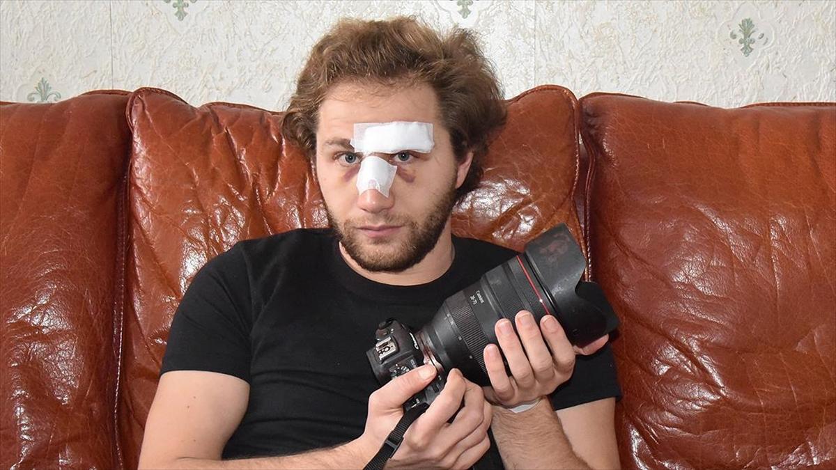 Paris'te polis şiddetine maruz kalan Suriyeli gazeteci Al Halbi: Başıma gelenler Suriye'de yaşadıklarımı hatırlattı