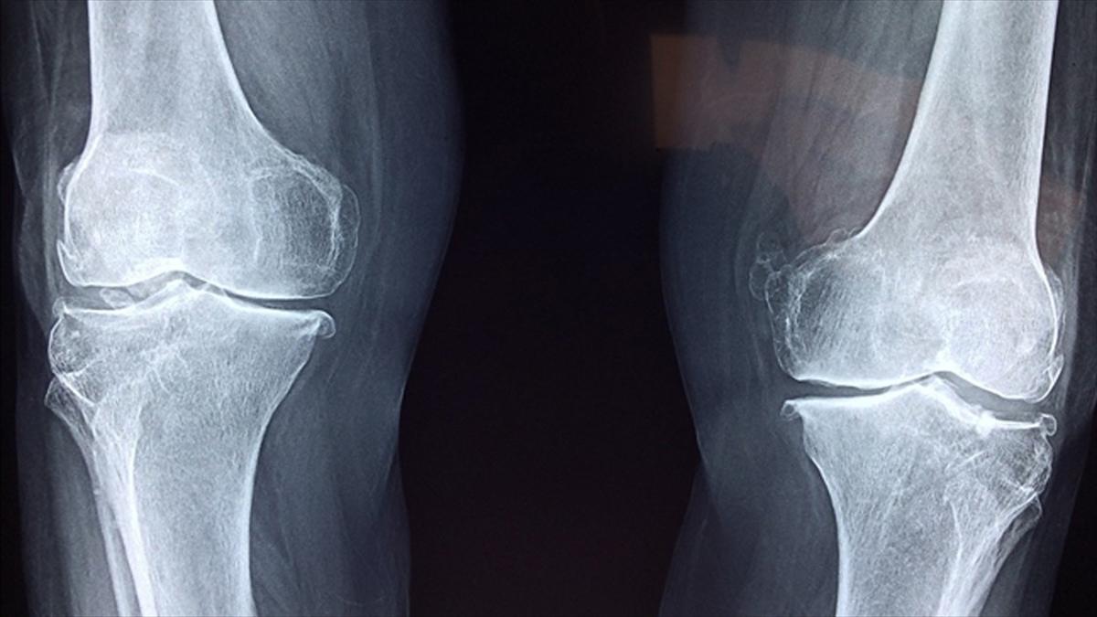 Kolajen peptitler eklem ve kemik rahatsızlıklarının tedavisinde fayda sağlıyor